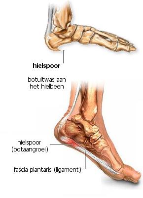 pijn in voet zijkant en onderkant
